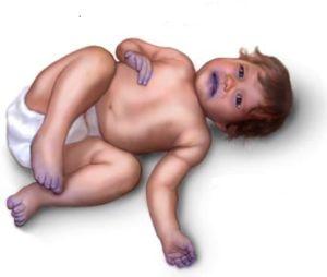 Tonul pielii la un copil cu un cusur