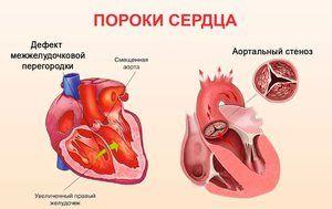 Tipuri de boli de inima la copii