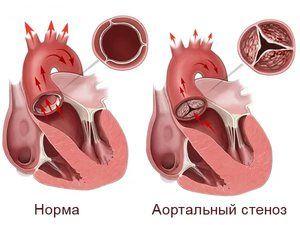 Boala cardiacă aortică