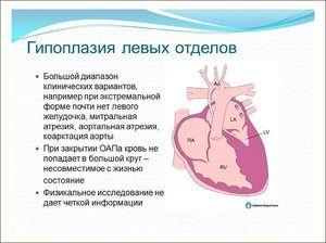 Hipoplazia atriului stâng