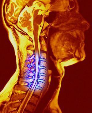 Osteochondroză cervicală