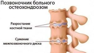VSB cu osteocondroză cervicală