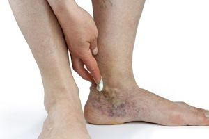 Simptomele membrelor inferioare și ale venelor