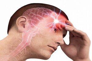 Descrierea bolii anevrismelor cerebrale