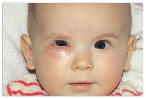 Inflamația ductului lacrimal la copiii mici