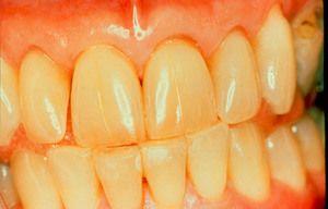 Clarificarea dinților