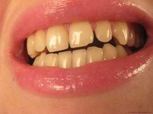 Din ce dinți galben