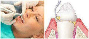 Îndepărtarea calculului în stomatologie