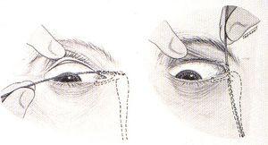 Etape de detectare a canalului lacrimal