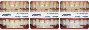 Cea mai nouă metodă de albire a dinților - Zoom 4