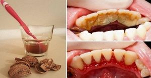 Ce spune placa din dinți?