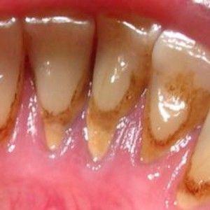 Metode de combatere a plăcii pe dinți