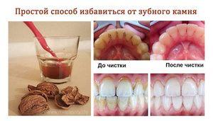 Cum se curata dintii de pe o placa