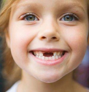 Înlocuirea dinților